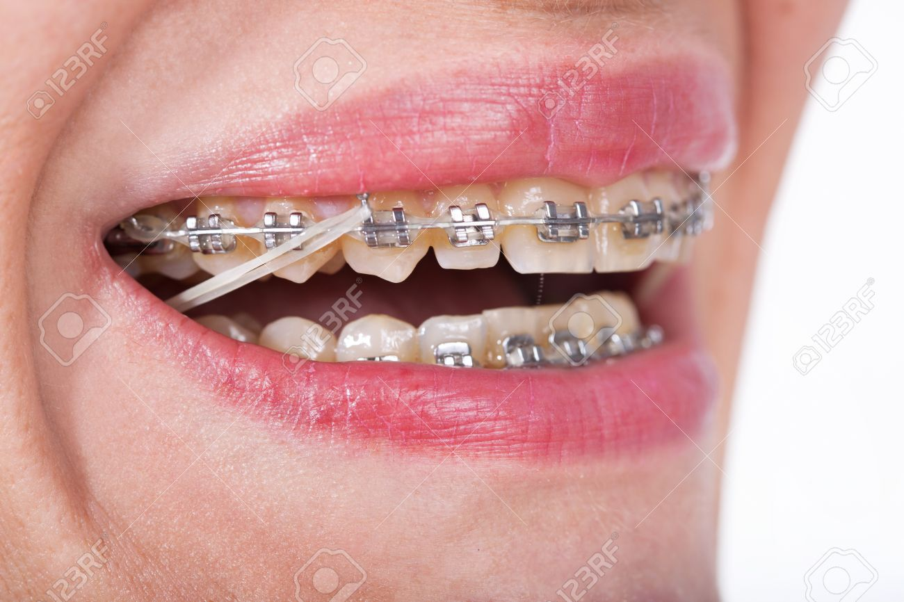 Closeup Ceramic and Metal Braces on Teeth with Elastic Rubber Ba